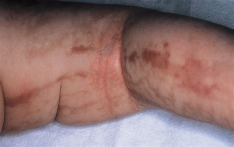Late Recurrence of Inflammatory First-Stage Lesions in